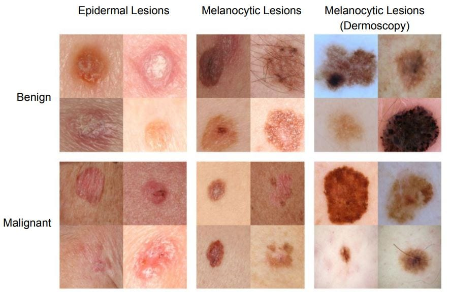 How Neural Networks Are Being Used For Skin Cancer
