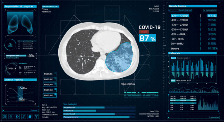 AI medical images Covid 19